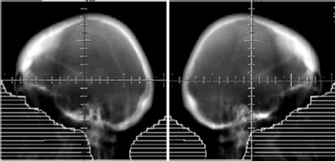 Report of whole-brain radiation therapy in a patient with